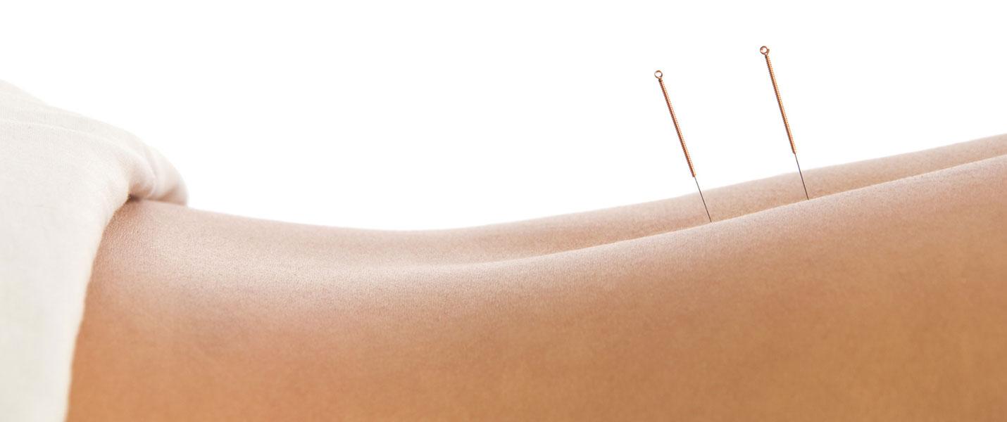 acupuntura para adelgazar bogota colombiano